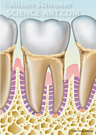 Periodontal disease dental illustration art