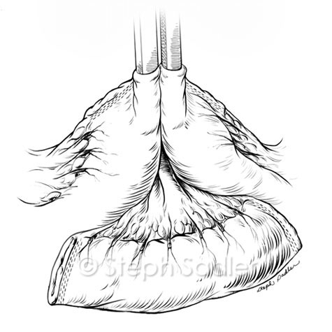 Ureteroileal Conduit