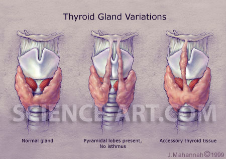 thyroid gland anomolies - illustration@science-art, Human Body