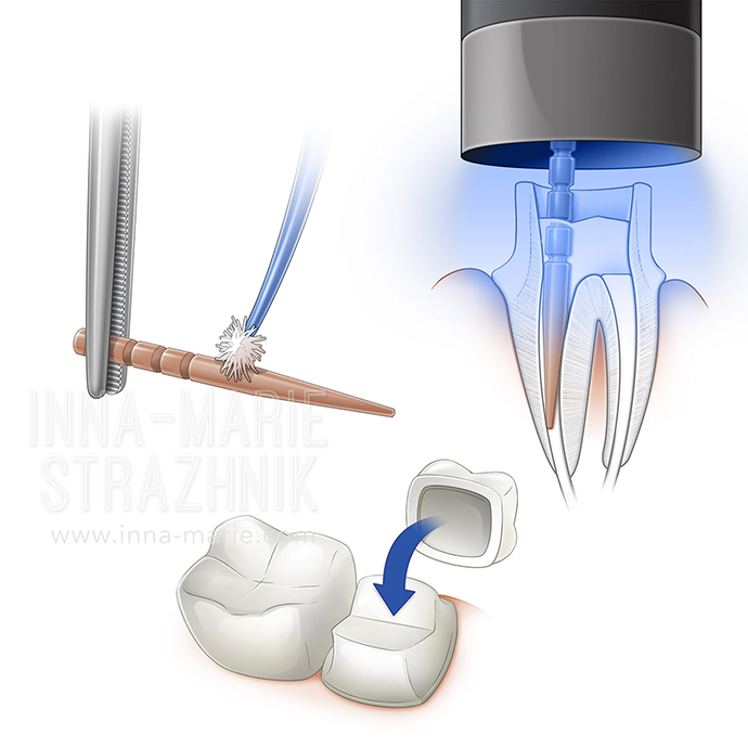 Selections- Restorative Endodontic Techniques