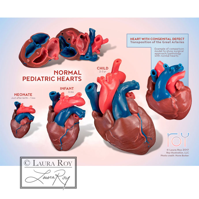 3D-Printed Normal Pediatric Hearts