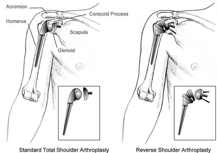 Reverse Shoulder Implant