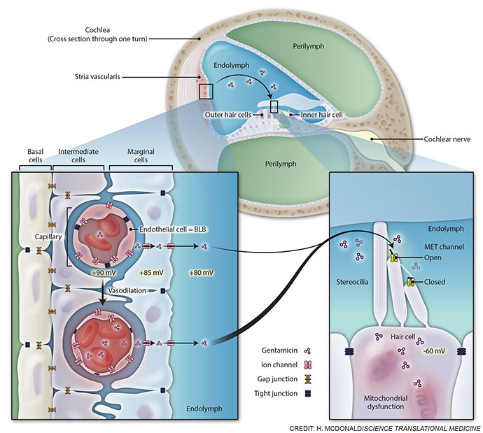 Antibiotic route to the cochlea