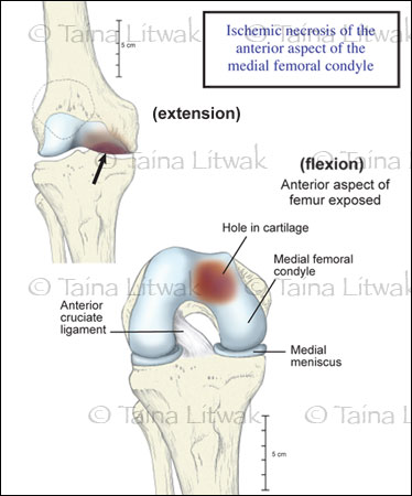 Knee joint damage